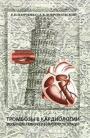 Тромбозы в кардиологии. Механизмы развития и возможности терапии